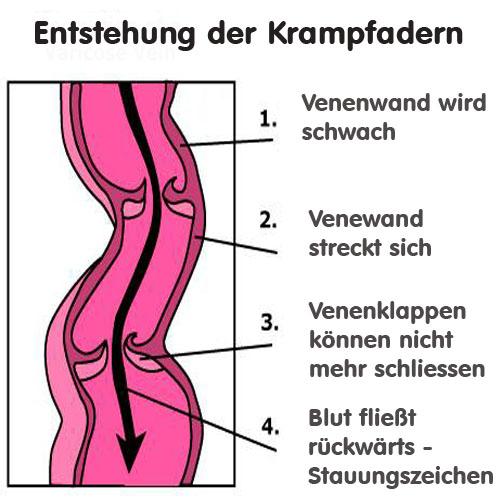 tratamentul cu mișcare varicoasă