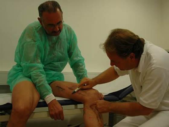Patient mit Krampfadern